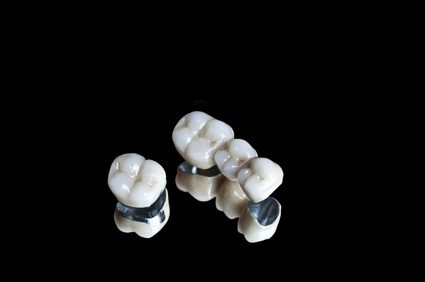 ceramic-teeth