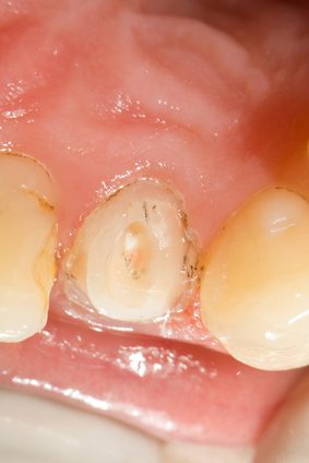 dental-treatment-occlusal-view
