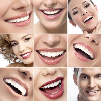 teeth-and-smiles-collage